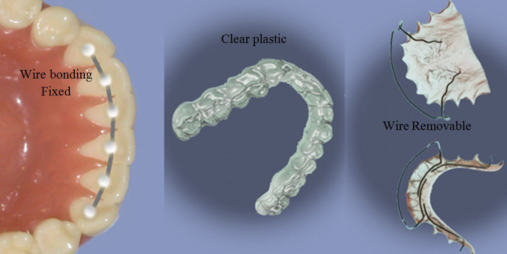 Types of retainers