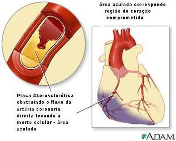 Efeito das Drogas no coração