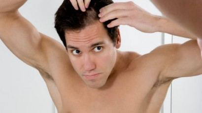 Male Pattern Baldness - Hair Loss Info