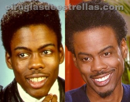 Chris Rock antes y después