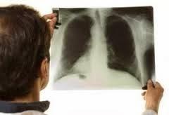 obat herbal penyakit paru paru aman tanpa efek samping