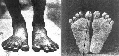 A barefoot person's feet are quite different to those of the modern day person