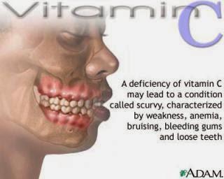 kekurangan vitamin C