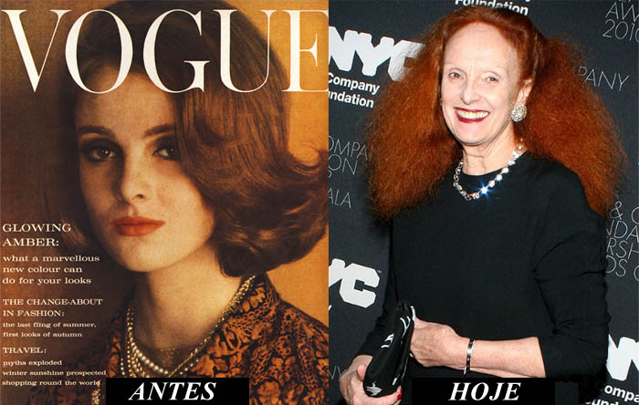 FASHION DOC - THE SEPTEMBER ISSUE_Grace Coddington_acidente com a modelo_antes e depois_desconfigurada_braço direito de Anna Wintour