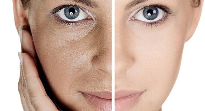 8 sencillos consejos para reducir los poros abiertos