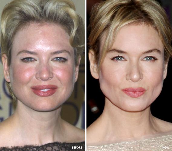 Beauté et Santé: Les symptômes de acné adulte