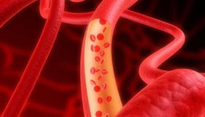 Obat Herbal Untuk Melancarkan Peredaran Darah