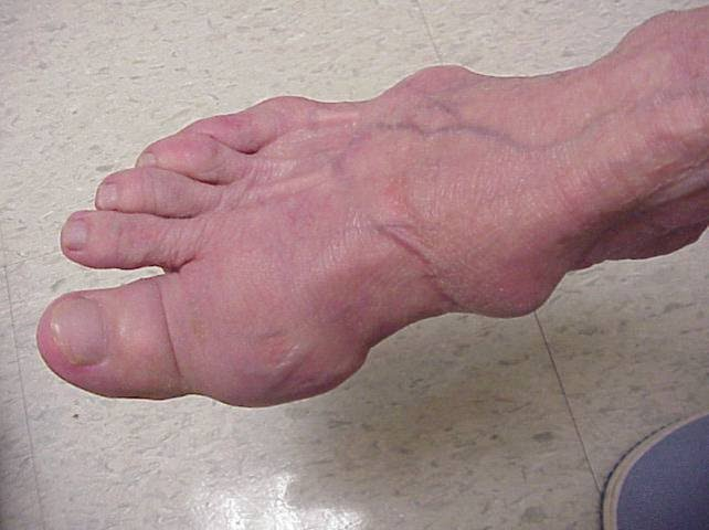 how to fix gout in the foot