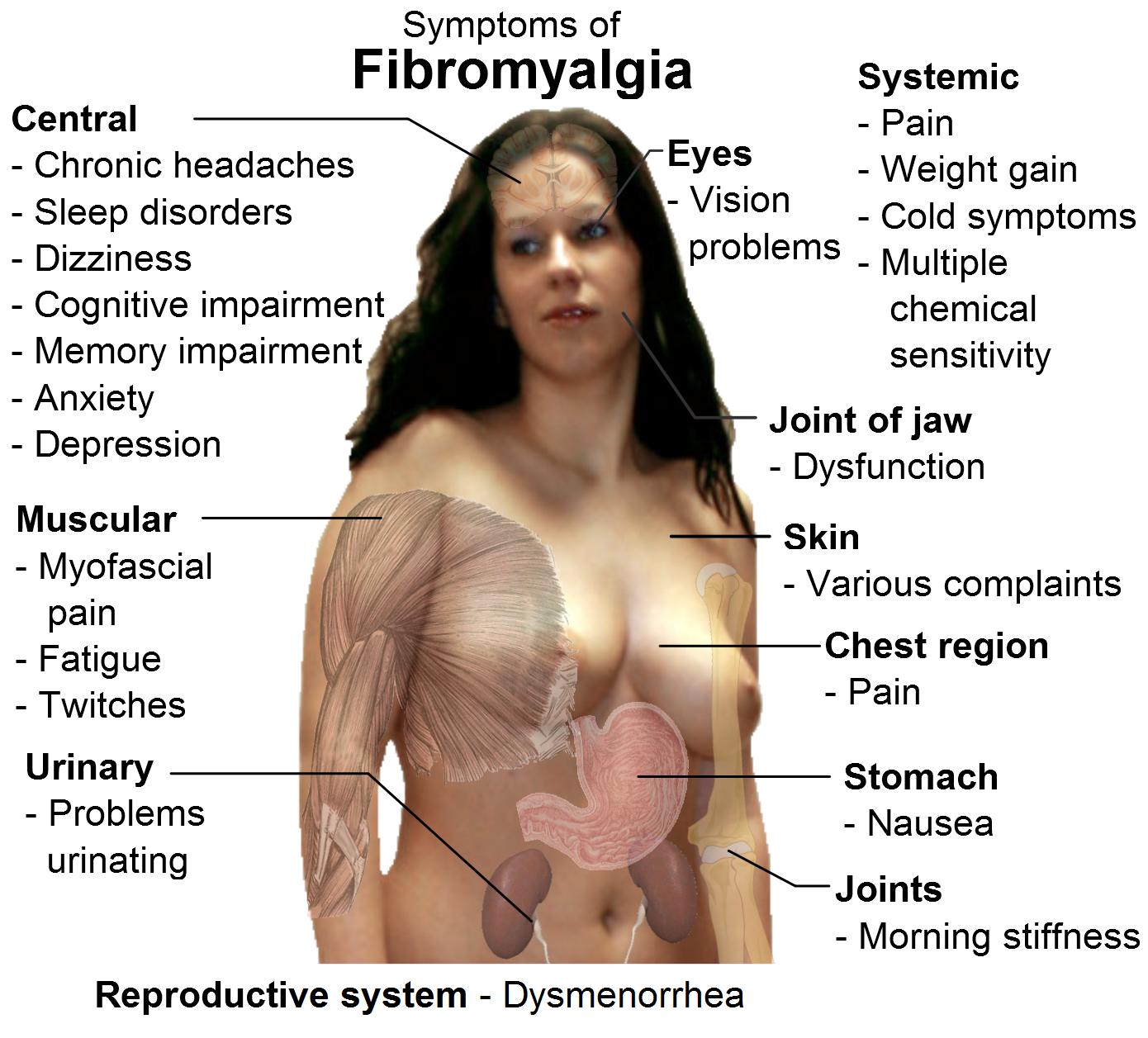 Obat Fibromyalgia