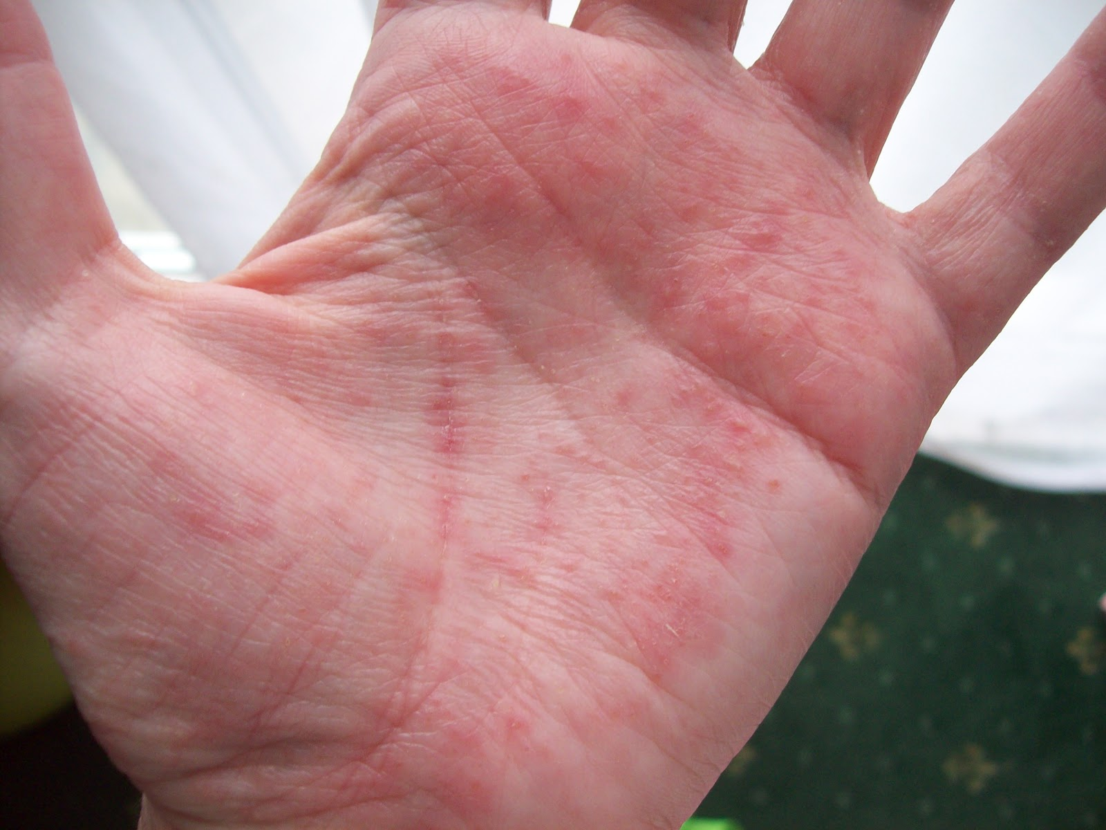 Red Itchy Bumps On Hands