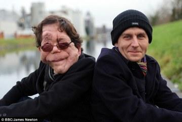 英国の「NF1」患者 ピアソン兄弟 (双子)
