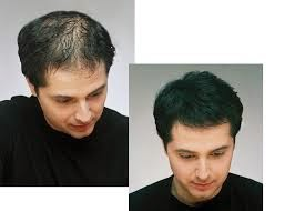 Treatment For Hair Fall in Men
