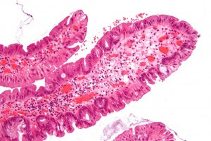 colon adenoma pathology, H&E stain, via Wikipedia and a Creative Commons license: Nephron