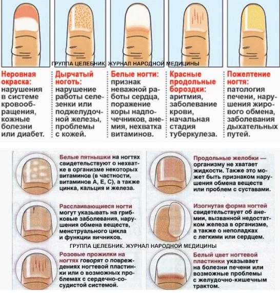 Диагностика заболеваний по ногтям рук