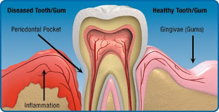 Symptoms for Gum Problems