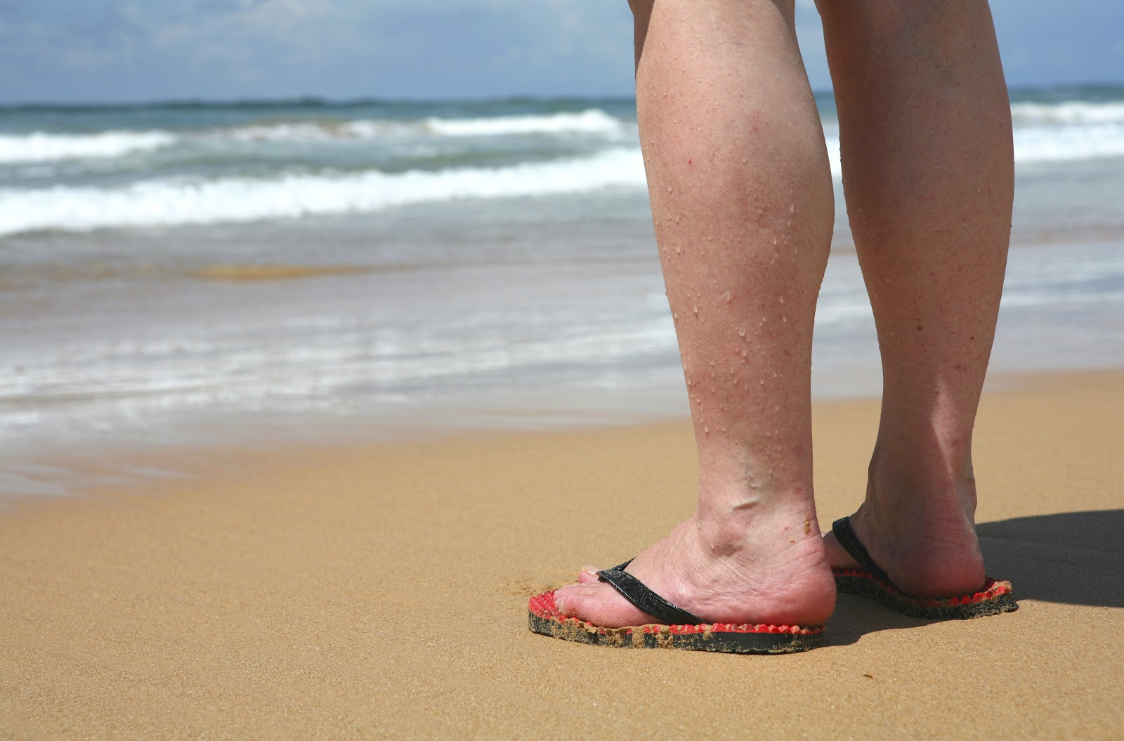 For many women  varicose veins  Varicose Veins In Feet