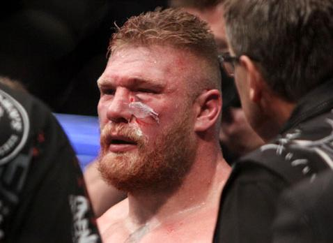 Adam's Wrestling: Brock Lesnar Retires From UFC