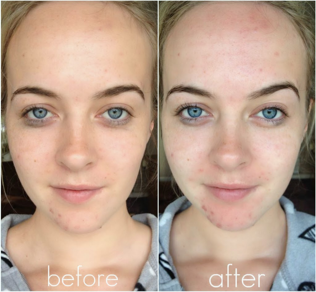 Clarisonic before and after