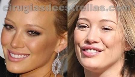 Hilary Duff cirugia