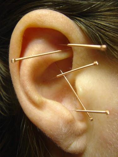 Επιστημονικός Ιατρικός Βελονισμός: Auricular Acupuncture ...