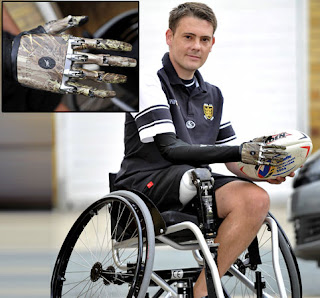 Mike Swainger, bionic man