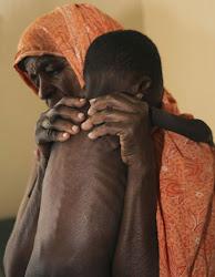 SAYYID AZIM (ASSOCIATED PRESS).    El pie de foto nos cuenta un telegrama: un niño con malnutrición