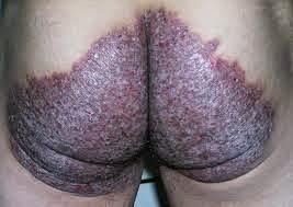 obat gatal selangkangan pantat menahun