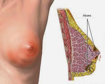 Cara mengobati kanker payudara awal