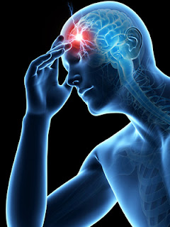 Waspada, Inilah 4 Alasan Orang Sehat Bisa Terserang Stroke
