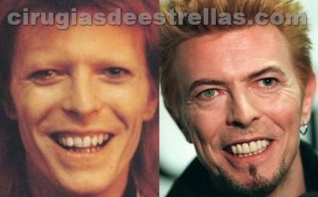 david bowie antes y despues