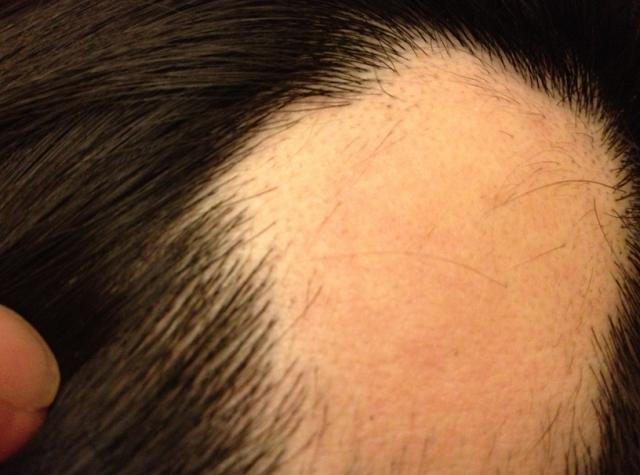 Mengobati Rambut Rontok, cara mengobati rambut rontok, Mengurangi Rambut Rontok, cara mengurangi rambut rontok, Rambut Panjang, rambut panjang, Shampo Rambut, shampo untuk rambut rontok
