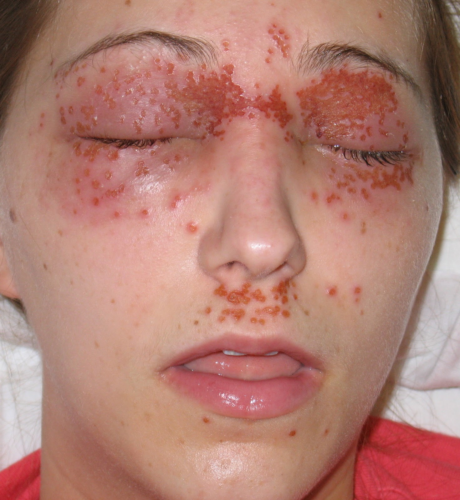 Symptoms of herpes simplex 1 infection lobby