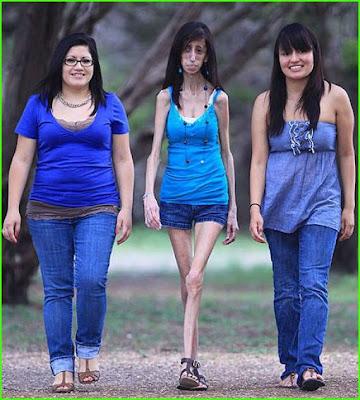 Wanita Terkurus Di Dunia, Di Amerika, Texas, Lizzie Velasquez, Mahasiswa Komunikasi, Neonatal Progeroid Syndrome, sindrom,Wanita Terkurus Sedunia