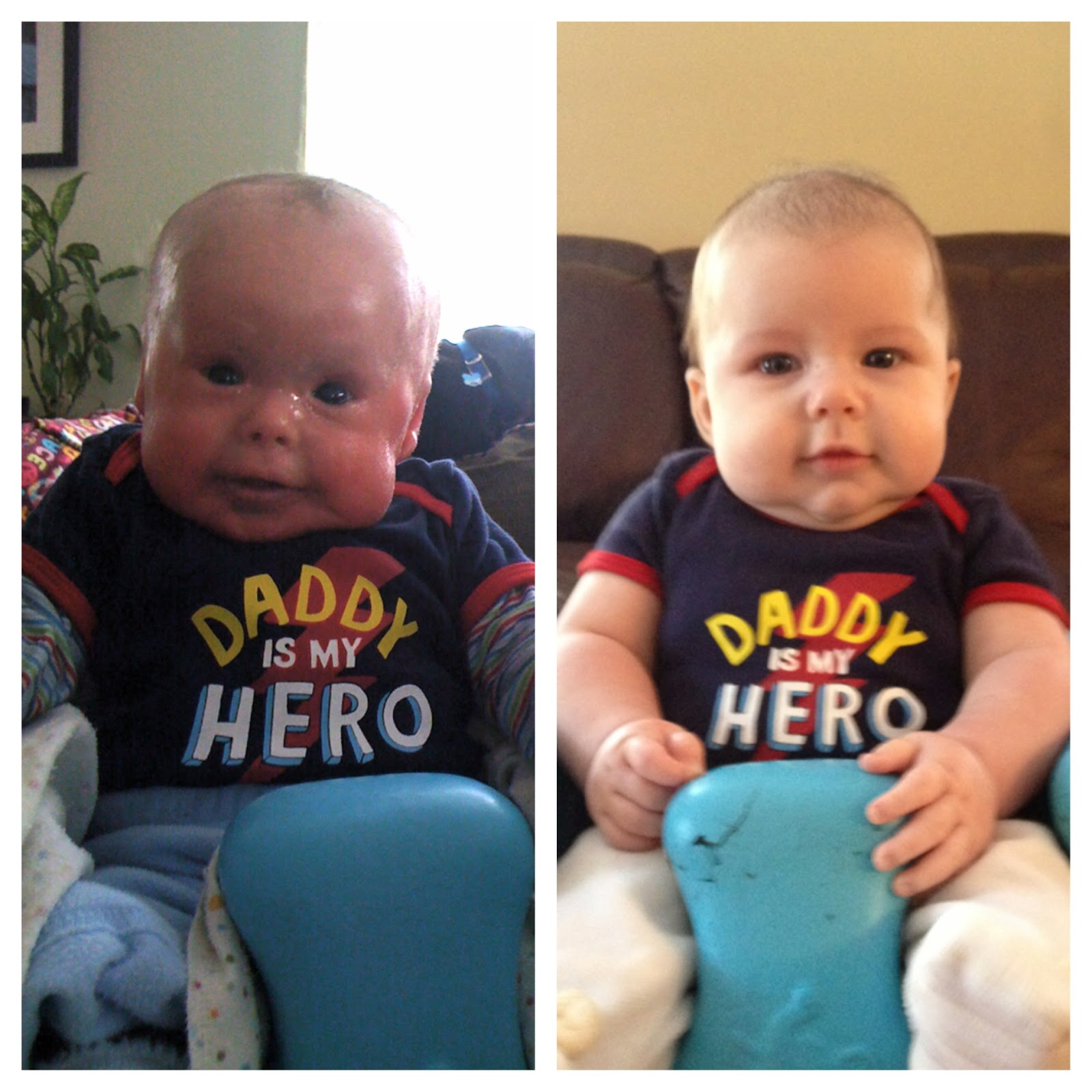 ~Our 'Young Warrior' Evan~ Living with Harlequin Ichthyosis