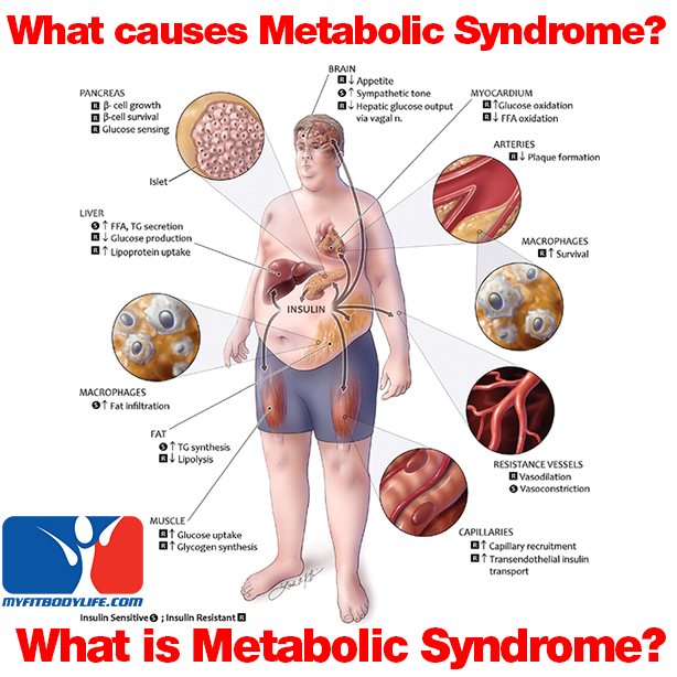 influence of metabolic syndrome on hypertension related Metabolic syndrome is a powerful predictor of cardiovascular disease in hypertension, and large-artery stiffness is increasingly recognized as a cardiovascular risk factor we hypothesized that the adverse prognostic significance of the metabolic syndrome in hypertension might be explained in part by its association with aortic stiffness.