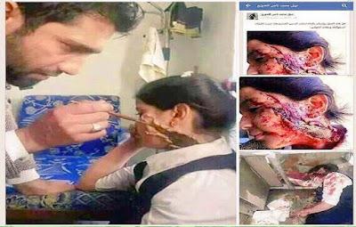 tentara media syiah dibalik akting gadis bersimbah darah