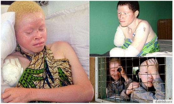 Golongan Albino Di Buru Dan Di Jual Seperti Binatang