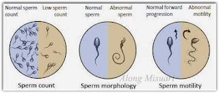 Sperma lelaki