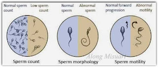 Ujian sperma