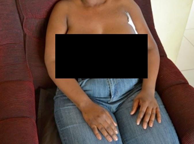 Woman's Breast 'Stolen In Her Sleep'