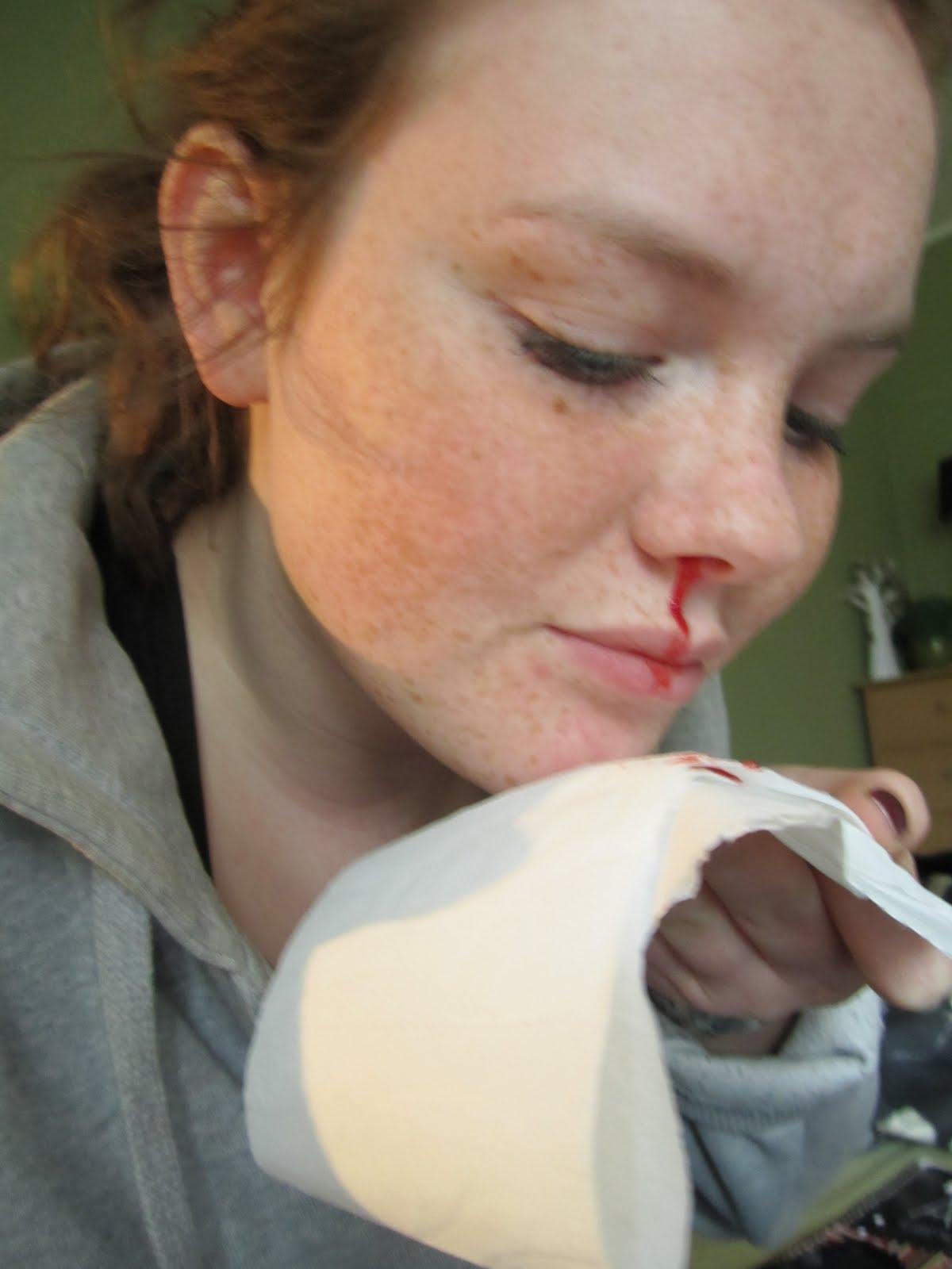 blöder mycket näsblod