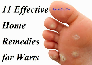 11 Effective Home Remedies for Warts