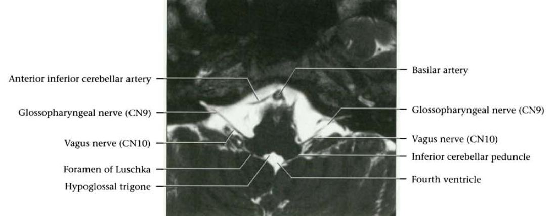 Dr Balaji Anvekars Neuroradiology Cases Cranial Nerves Normal Mri