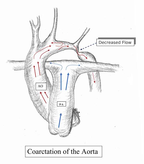 colon diagram intestine
