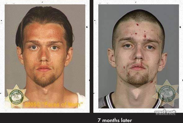 wajah keempat Wajah Para Pemakai Narkoba Sebelum Dan Sesudah Kecanduan