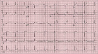 EKG of the Day (2.25)
