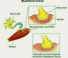 what is myasthenia gravis. myasthenia gravis association and myasthenia gravis medications