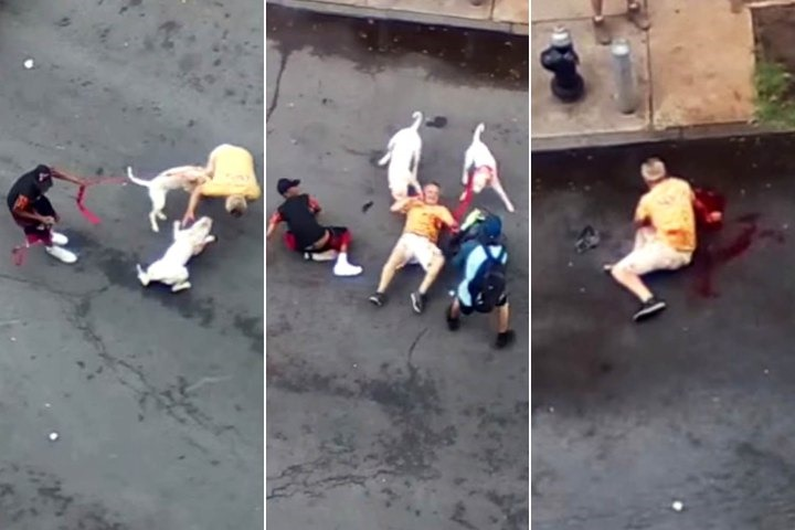 Pitbull Dog Attack Human