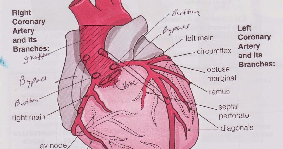 Jim S Bicuspid Heart Valve Diary Illustration Surgeon