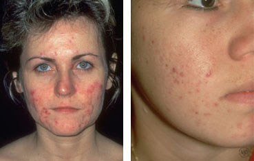 Young and Healthy Skin: More Adults Battling Acne Breakouts